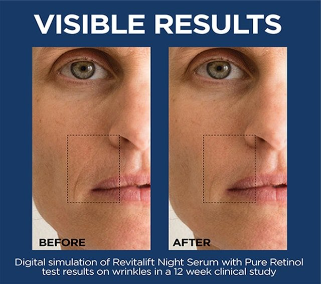 revitalift before after images