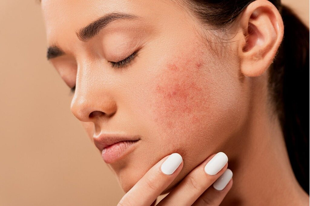 woman with pimples on cheeks